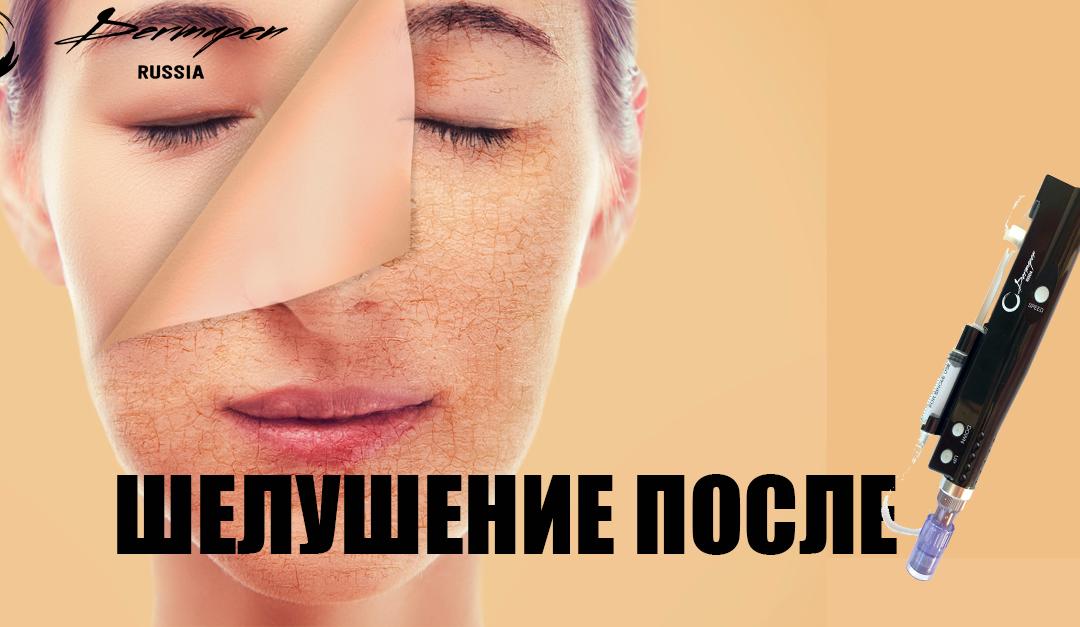 Шелушения после процедур с дермапеном