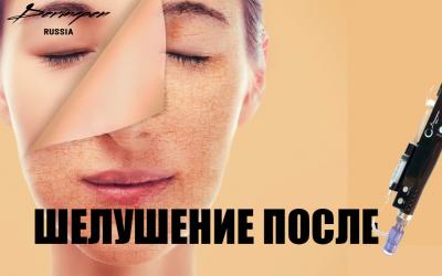 Шелушения после процедур с дермапеном. Это нормально ?